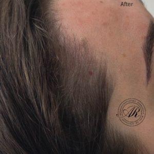 Tetování vlasů a změna životního stylu – metody, které Vám mohou pomoci udržet vlasy na správném místě